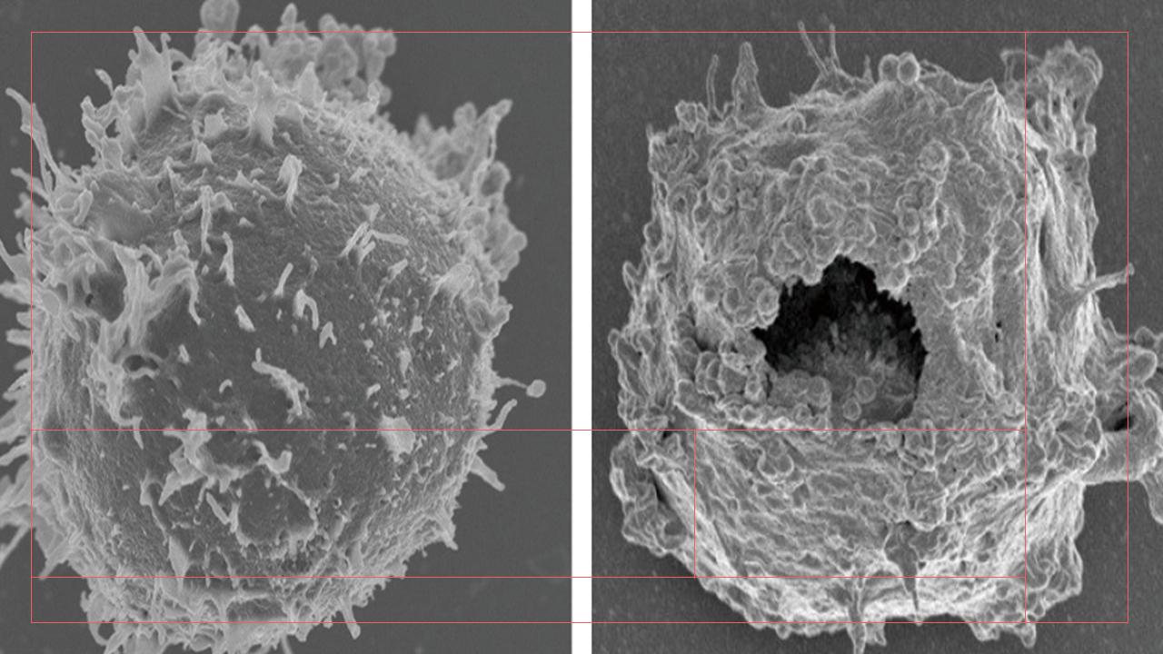 ホジキンリンパ腫に対するアナポコーシス抗体投与前(左)と投与30分後の電子顕微鏡写真。生じる穴の大きさは、補体やパーフォリンなどによって開く穴の200倍にも達する
